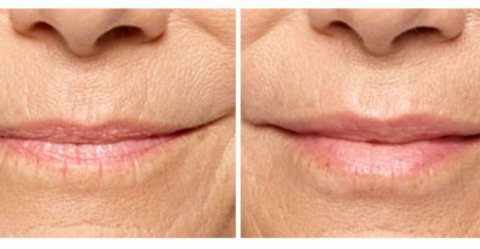 Restylane Silk for Non-Surgical Lip Enhancement - Milwaukee